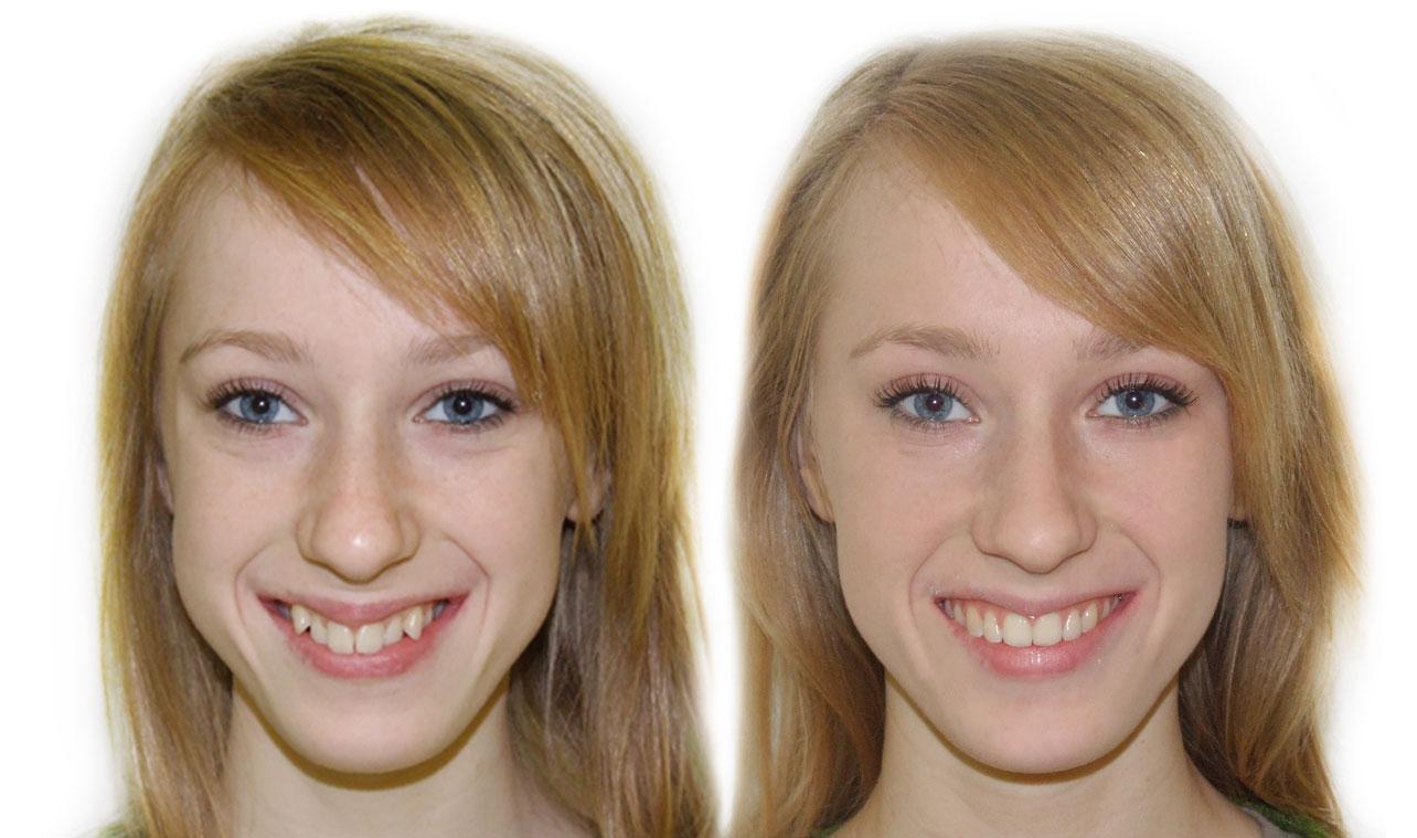andel-dental-strojcek-krive-zuby-vyrovnanie-zubov-pred-a-po