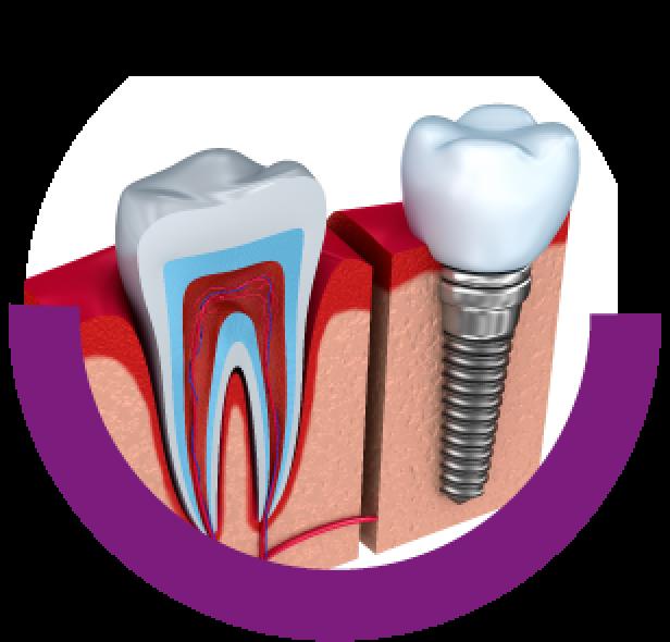MDDr. Roman Andil špecialista v protetike - protetika-zubny lekar zubna ambulancia dental center--zubna ambulancia-zubar-rekonstrukcia zubu-chybajuce zuby-zubna nahrada-zubna korunka-keramicke fazety zubna korunka implantologia