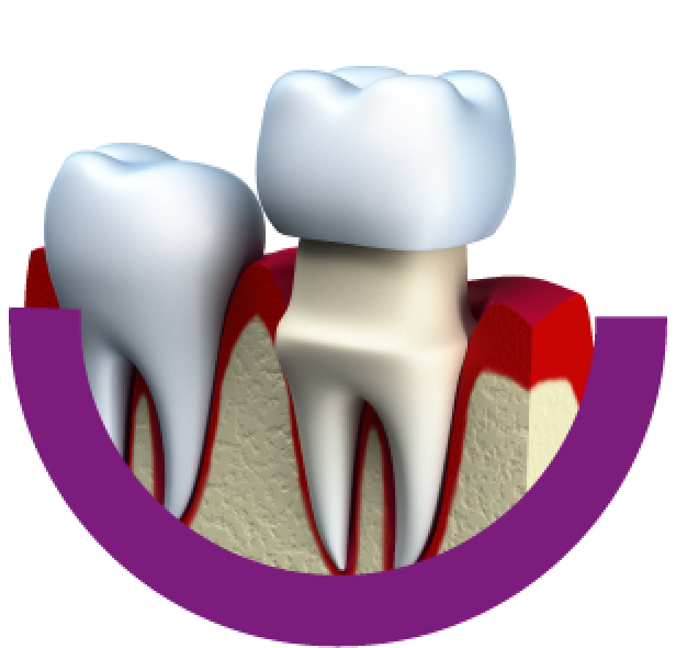 protetika-zubny lekar zubna ambulancia dental center--zubna ambulancia-zubar-rekonstrukcia zubu-chybajuce zuby-zubna nahrada-zubna korunka-keramicke fazety - nahrada zubov